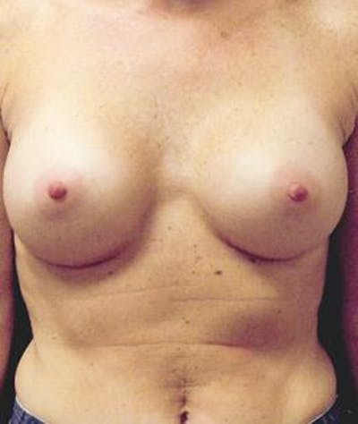 Breast Augmentation Gallery - Patient 4861045 - Image 2