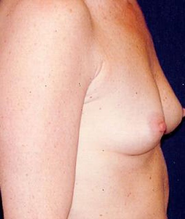 Breast Augmentation Gallery - Patient 4861045 - Image 3