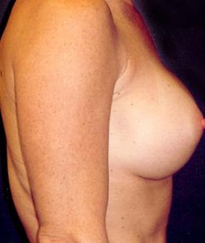 Breast Augmentation Gallery - Patient 4861045 - Image 4