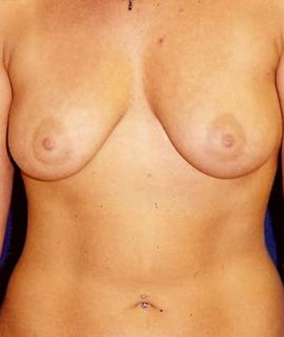 Breast Augmentation Gallery - Patient 4861048 - Image 1