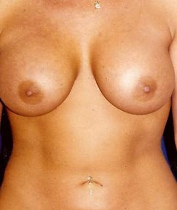 Breast Augmentation Gallery - Patient 4861048 - Image 2