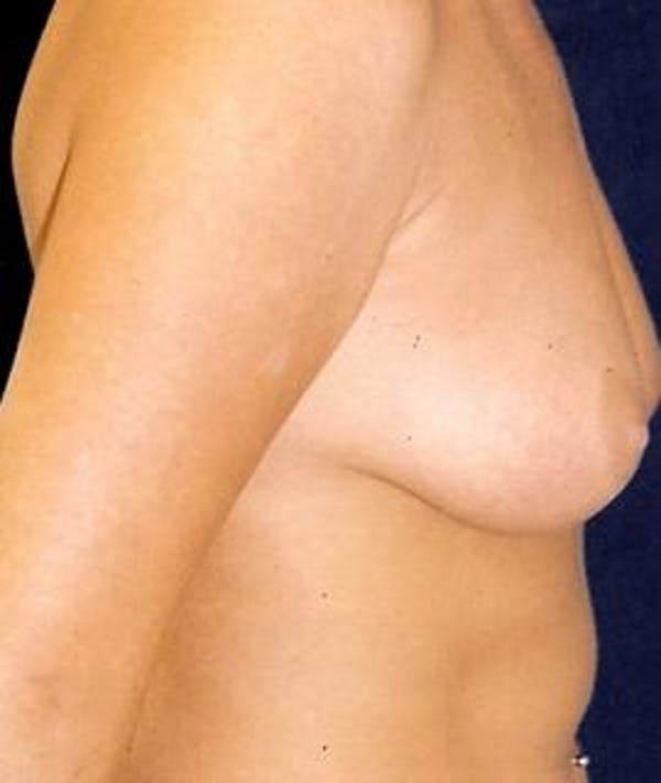 Breast Augmentation Gallery - Patient 4861048 - Image 3