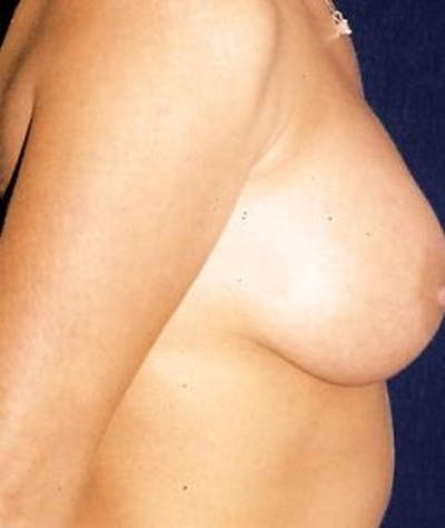 Breast Augmentation Gallery - Patient 4861048 - Image 4