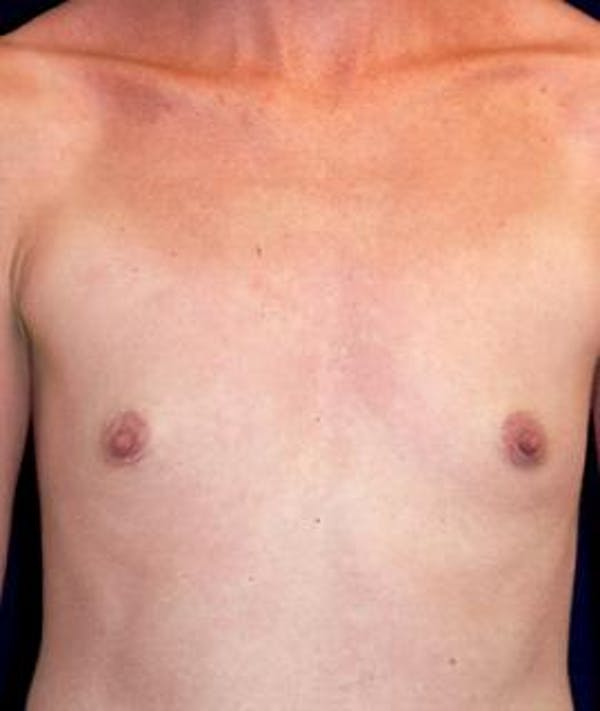 Breast Augmentation Gallery - Patient 4861052 - Image 1
