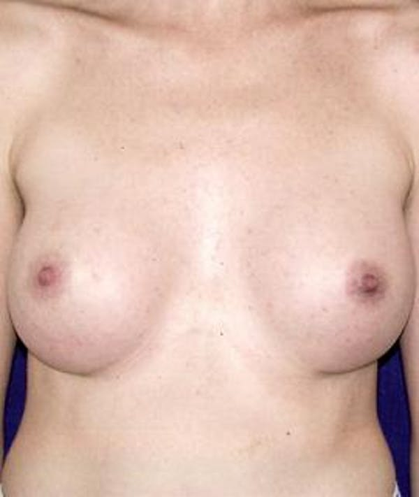 Breast Augmentation Gallery - Patient 4861052 - Image 2
