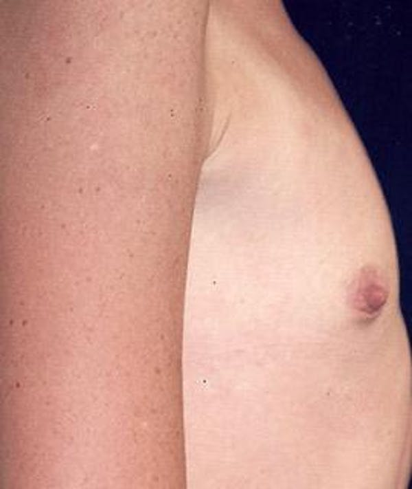 Breast Augmentation Gallery - Patient 4861052 - Image 3