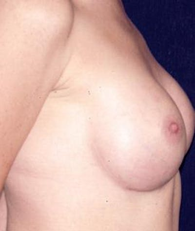 Breast Augmentation Gallery - Patient 4861052 - Image 4