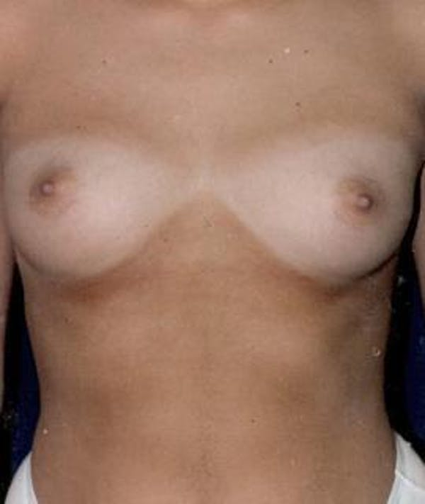 Breast Augmentation Gallery - Patient 4861053 - Image 1