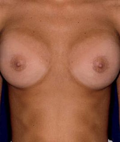 Breast Augmentation Gallery - Patient 4861053 - Image 2