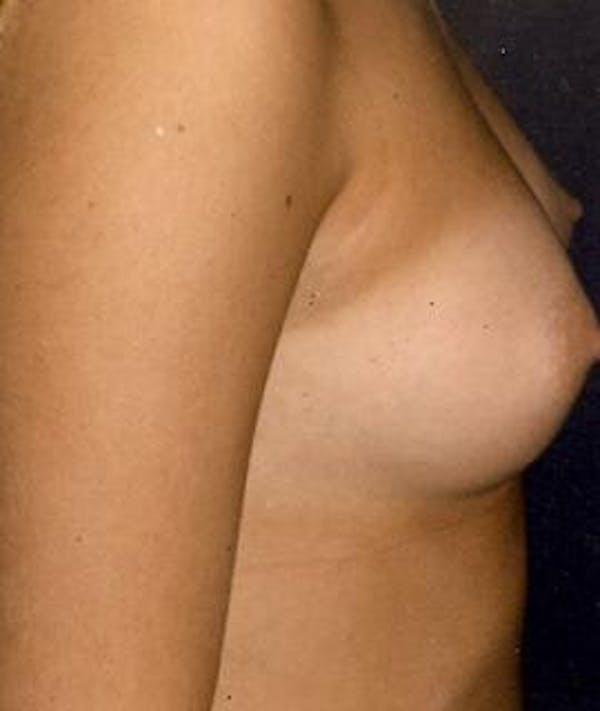 Breast Augmentation Gallery - Patient 4861053 - Image 3