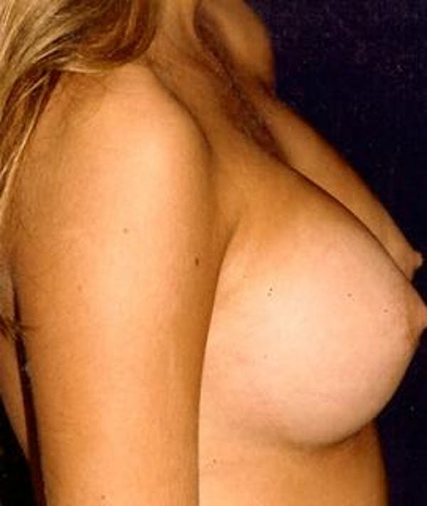 Breast Augmentation Gallery - Patient 4861053 - Image 4