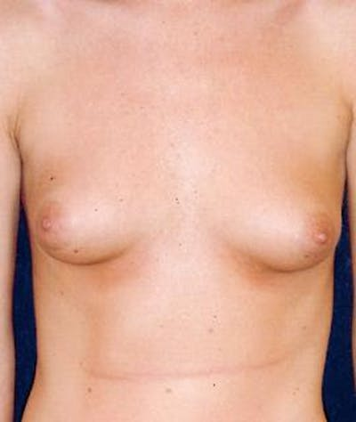 Breast Augmentation Gallery - Patient 4861055 - Image 1