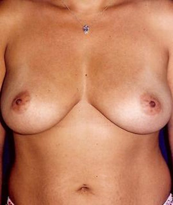 Breast Augmentation Gallery - Patient 4861059 - Image 1