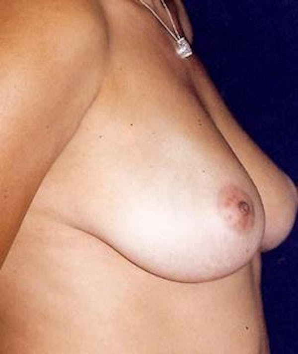 Breast Augmentation Gallery - Patient 4861059 - Image 3