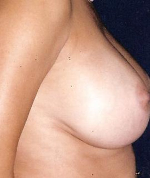 Breast Augmentation Gallery - Patient 4861059 - Image 4