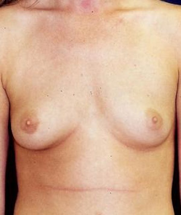 Breast Augmentation Gallery - Patient 4861066 - Image 1