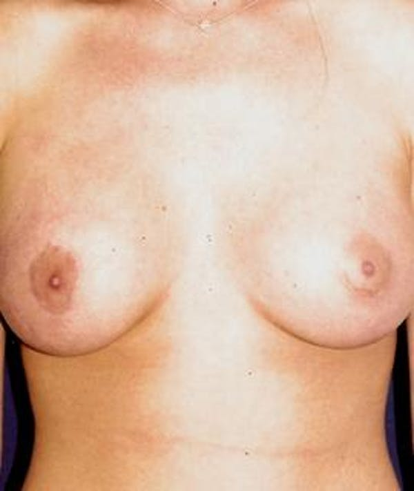 Breast Augmentation Gallery - Patient 4861066 - Image 2