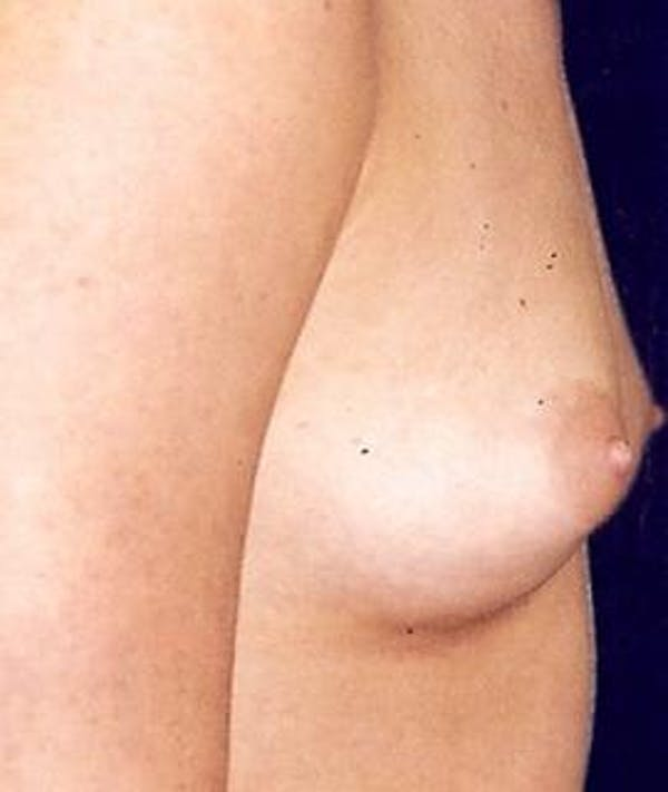 Breast Augmentation Gallery - Patient 4861066 - Image 3