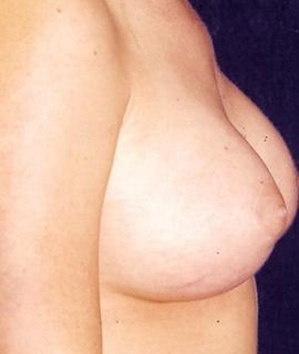 Breast Augmentation Gallery - Patient 4861066 - Image 4