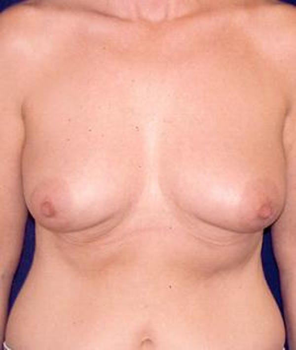 Breast Augmentation Gallery - Patient 4861067 - Image 1