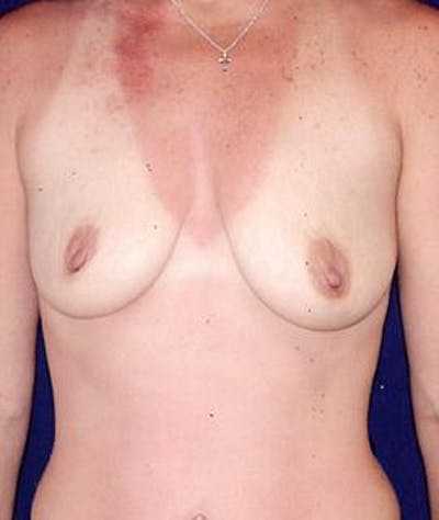 Breast Augmentation Gallery - Patient 4861070 - Image 1