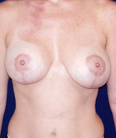 Breast Augmentation Gallery - Patient 4861070 - Image 2