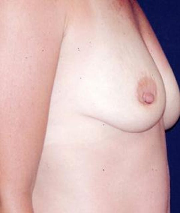 Breast Augmentation Gallery - Patient 4861070 - Image 3