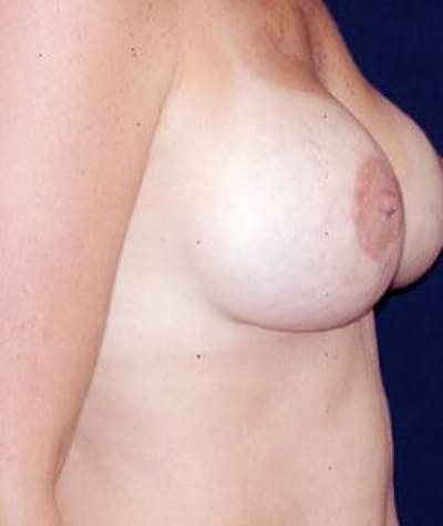 Breast Augmentation Gallery - Patient 4861070 - Image 4