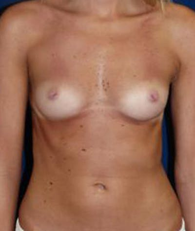 Breast Augmentation Gallery - Patient 4861075 - Image 1