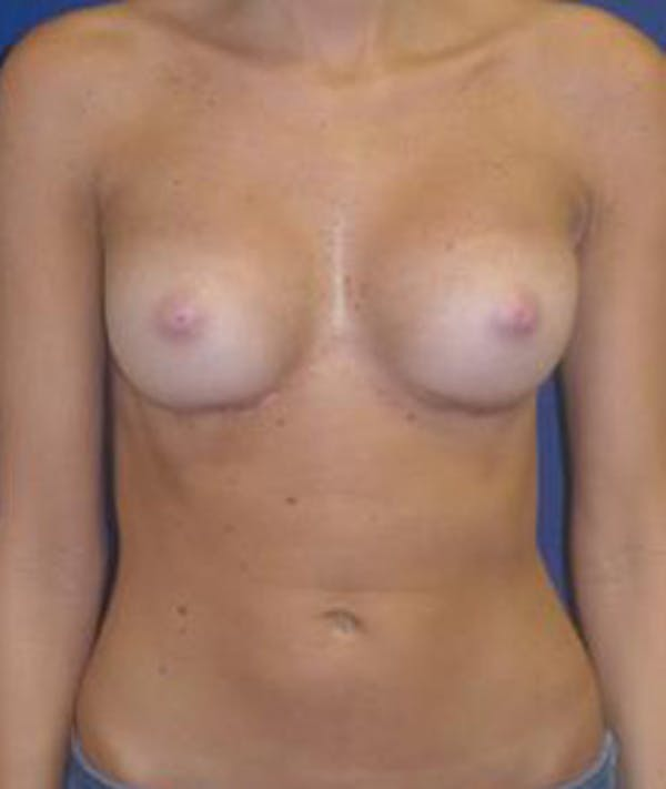 Breast Augmentation Gallery - Patient 4861075 - Image 2