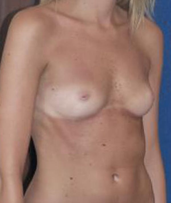 Breast Augmentation Gallery - Patient 4861075 - Image 3