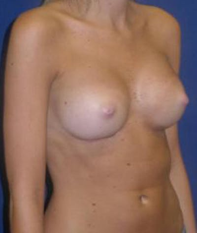Breast Augmentation Gallery - Patient 4861075 - Image 4