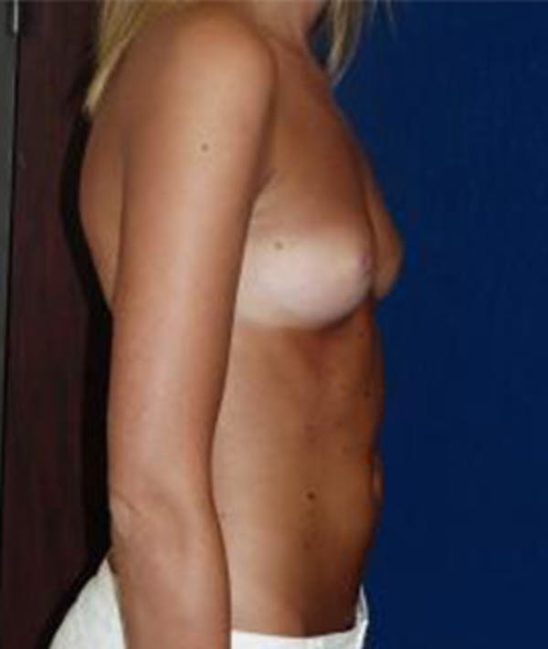 Breast Augmentation Gallery - Patient 4861075 - Image 5