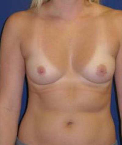 Breast Augmentation Gallery - Patient 4861077 - Image 1