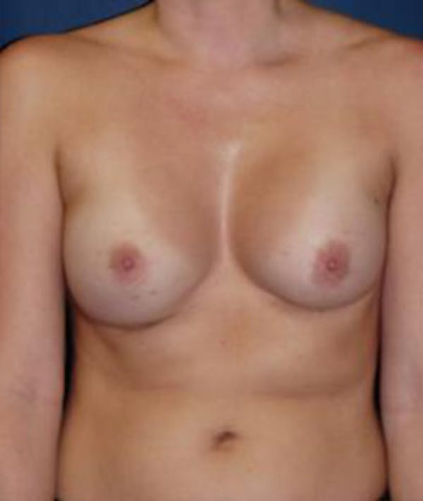 Breast Augmentation Gallery - Patient 4861077 - Image 2