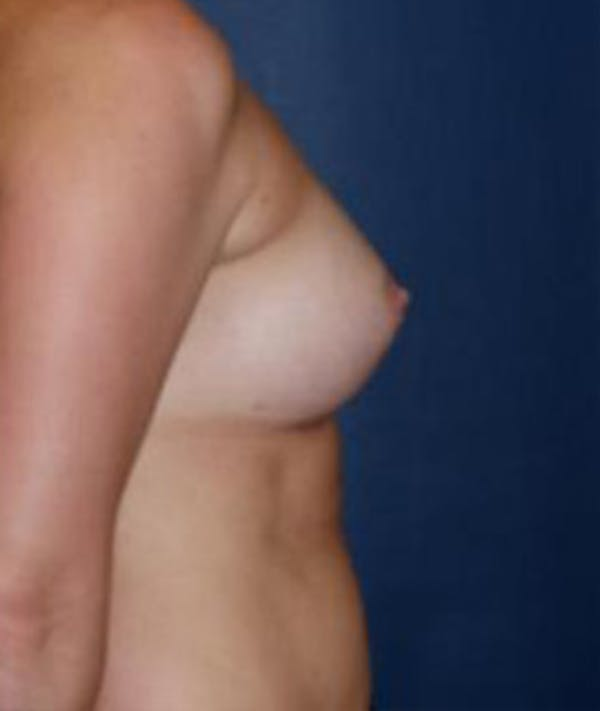 Breast Augmentation Gallery - Patient 4861077 - Image 4