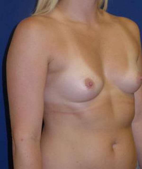 Breast Augmentation Gallery - Patient 4861077 - Image 5