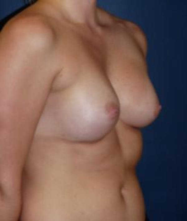 Breast Augmentation Gallery - Patient 4861077 - Image 6