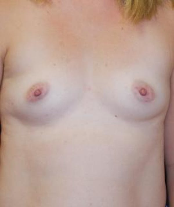 Breast Augmentation Gallery - Patient 4861079 - Image 1
