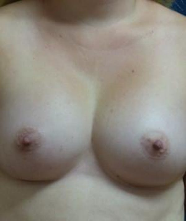 Breast Augmentation Gallery - Patient 4861079 - Image 2