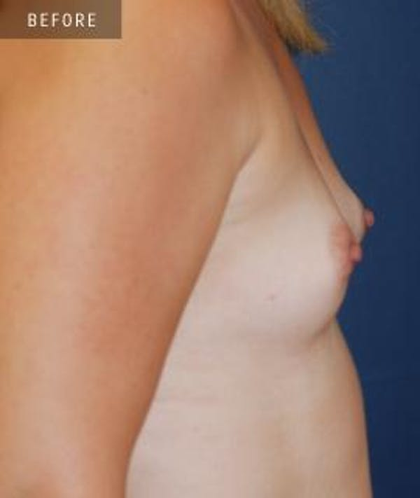 Breast Augmentation Gallery - Patient 4861079 - Image 3
