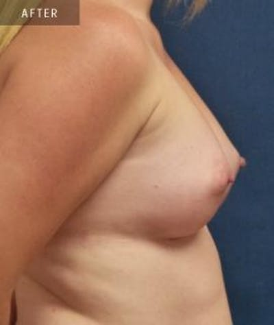 Breast Augmentation Gallery - Patient 4861079 - Image 4