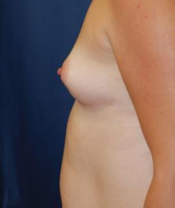 Breast Augmentation Gallery - Patient 4861079 - Image 5