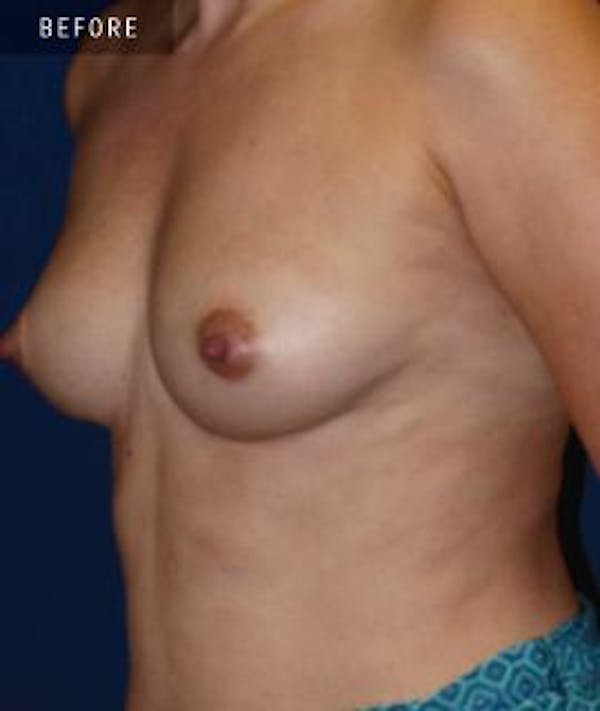 Breast Augmentation Gallery - Patient 4861080 - Image 1