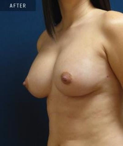 Breast Augmentation Gallery - Patient 4861080 - Image 2