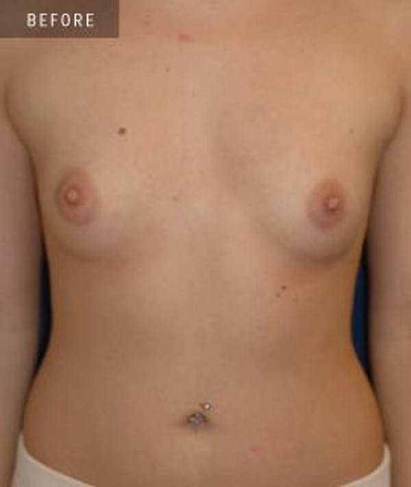 Breast Augmentation Gallery - Patient 4861081 - Image 1