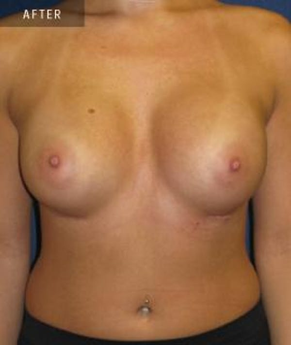 Breast Augmentation Gallery - Patient 4861081 - Image 2
