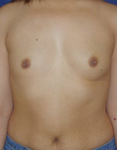 Breast Augmentation Gallery - Patient 4861085 - Image 1