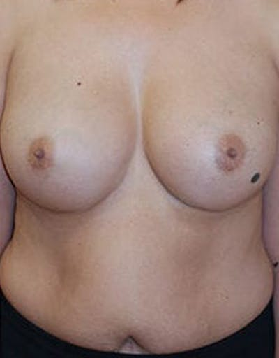 Breast Augmentation Gallery - Patient 4861085 - Image 2