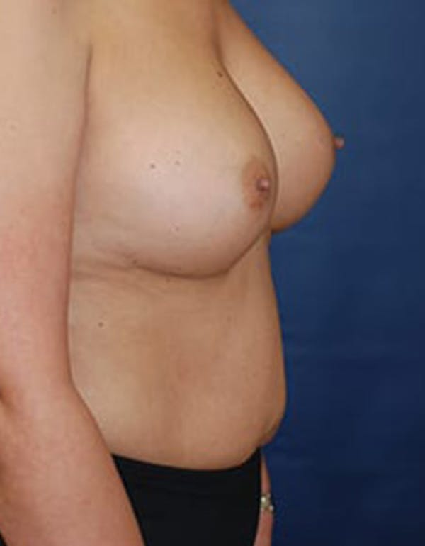 Breast Augmentation Gallery - Patient 4861085 - Image 3